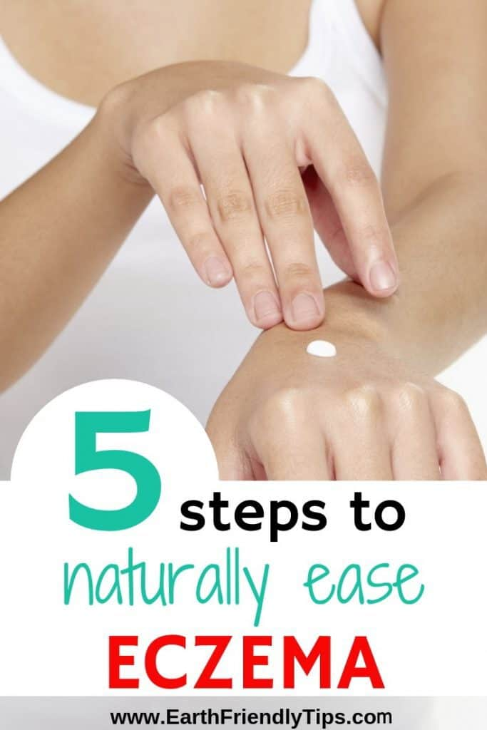 Woman rubbing lotion on hand text overlay 5 Steps to Naturally Ease Eczema